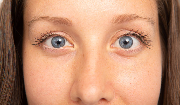 A closeup view of a young and pretty Caucasian woman with blue eyes, suffering from strabismus. A condition that causes the eyes not to align with each other.