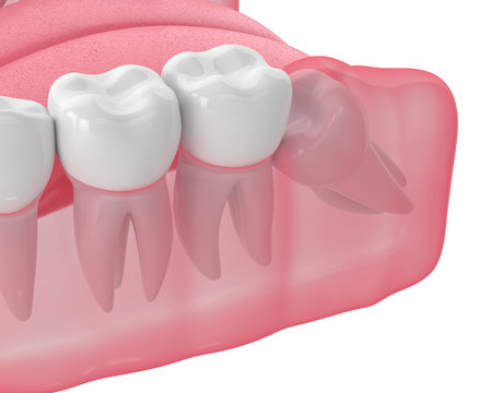 3d render of jaw with wisdom mesial impaction