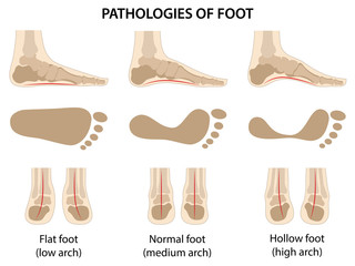 Pathologies of foot. Flat foot. Difference between sick and healthy feet. Vector illustration in flat style over white background