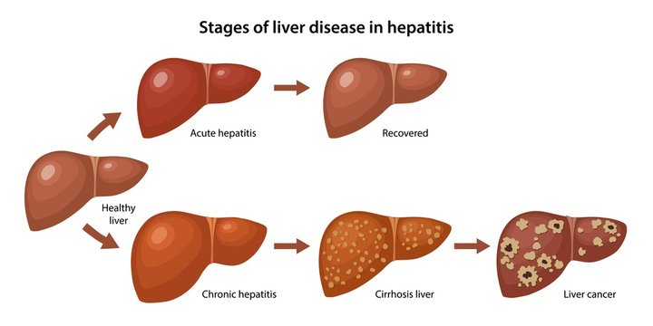 Stages of liver disease in hepatitis with description corresponding steps: healthy, acute, chronic hepatitis, cirrhosis and cancer liver. Vector illustration in flat style over white background