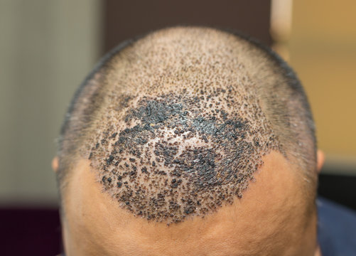 Top view of a man's head with hair transplant surgery. Bald head of hair loss treatment