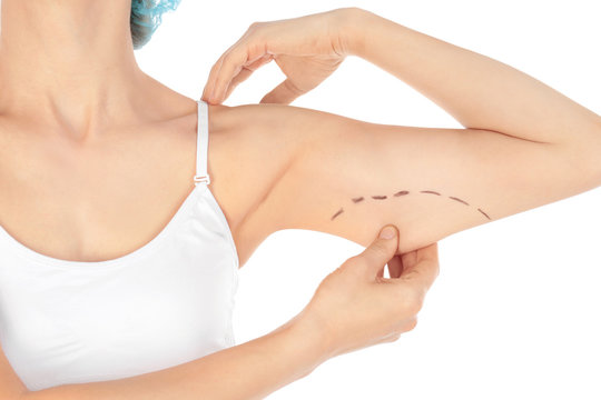 Woman with marks on arm for cosmetic surgery operation against white background, closeup