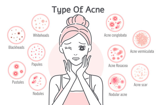 skin care type of acne