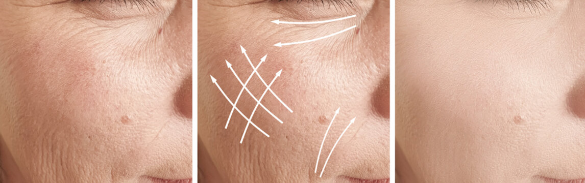 woman wrinkles face before and after treatment, arrow,