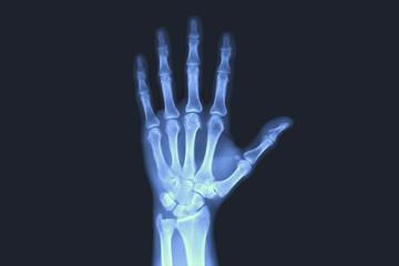 X-rayed human hand. X-ray of hand bones.