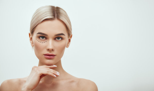 Perforation lines. Beautiful and young blonde woman with black surgical lines on eyelids and under eyes and looking at camera while standing against grey background
