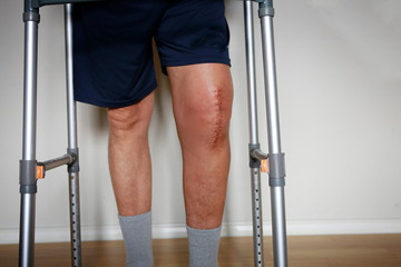 Fototapeta Man with walker after knee replacement surgery, stitches close up. Painful scar after knee surgery obraz