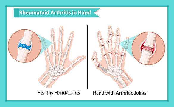 Scientific medical illustration of rheumatoid arthritis