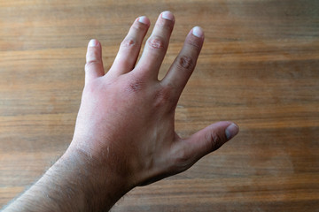 Male hand stung by bee or wasp. Hand swelling, inflammation, redness are signs of infection. Insect bite on left hand on wooden table background