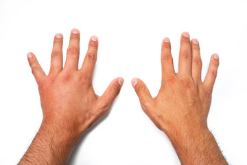 Comparison of two male hands stung by bee or wasp. Hand swelling, inflammation, redness are signs of infection. Insect bite on left hand on white background