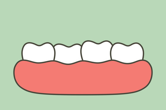 crowding teeth (malocclusion), dental problem - tooth cartoon vector flat style
