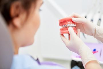Korrektur der Zahnfehlstellung durch Zahnspange