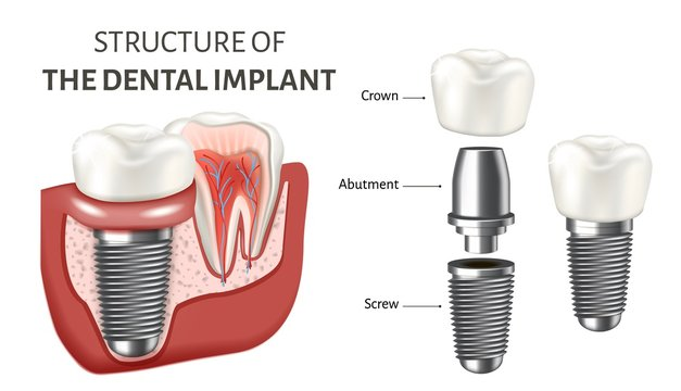 Educational poster showing a structure of the dental implant. Vector illustration isolated on the white background.