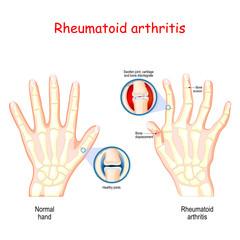 Rheumatoid Arthritis. Healthy hand, and hand with rheumatoid arthritis