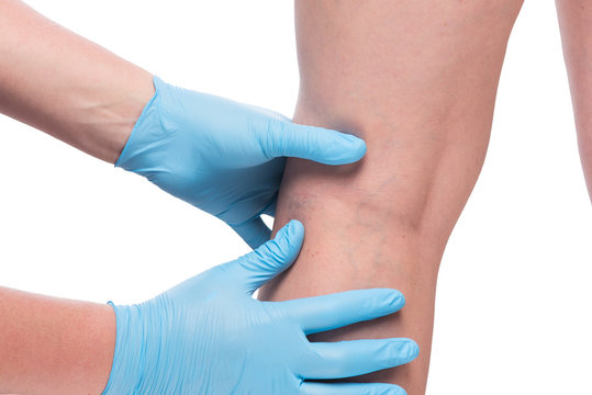 hands of doctor in gloves and leg with dilated veins close up on white background