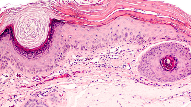 Skin biopsy of an actinic (solar) keratosis, common on sun-damaged skin and a precursor of squamous cell carcinoma (cancer).  Sunscreen can be prevent these lesions from  occurring.