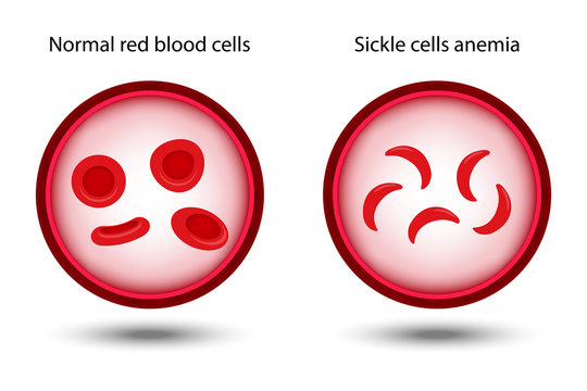 Comparison between Normal red blood cells and Sickle cells anemia in artery