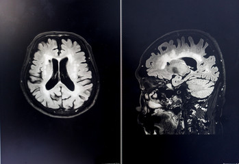 brain MRI for education Dementia Mix type stroke VaD
