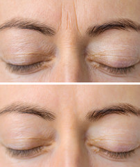 Woman's face skin before and after aesthetic beauty cosmetic procedures with removed skin wrinkles