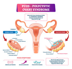 Polycystic ovary syndrome vector illustration. Labeled reproductive disease
