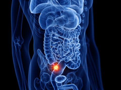 3d rendered medically accurate illustration of appendix cancer