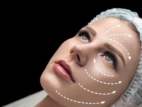 Female face marked with white arrows on the main facial lifting lines. Caucasian woman in spa salon, selected focus
