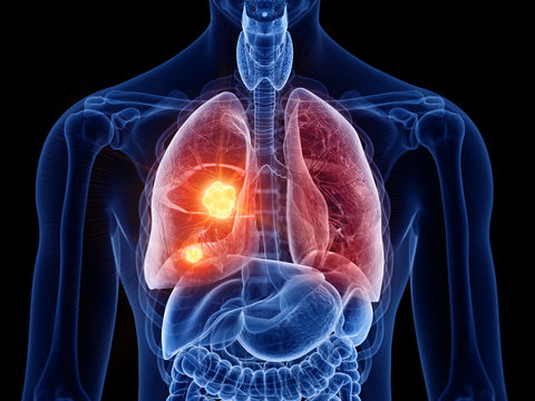 3d rendered medically accurate illustration of lung cancer