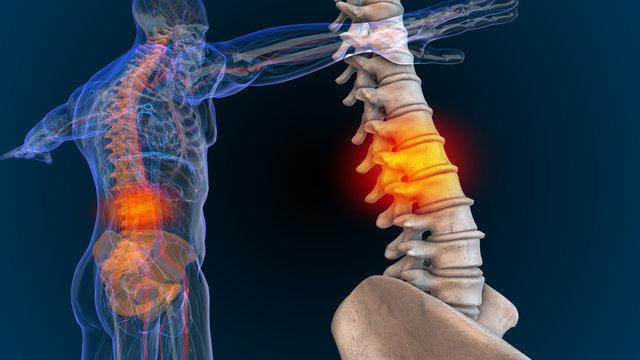 3d rendered illustration of  back and spine pain 3D illustration