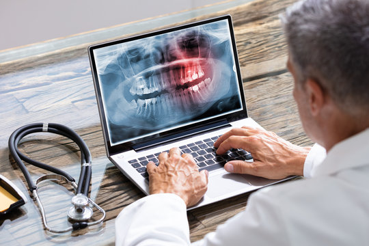 Dentist Typing On Laptop With Dental X-ray On Screen