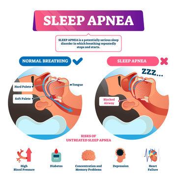 Sleep apnea vector illustration. Labeled nasal tongue blocked airway scheme