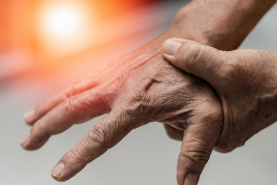 Trigger Finger problems. Woman's hand with red spot o fingers as suffer from Carpal tunnel syndrome. The symptoms of tingling, numbness, weakness, or pain of the fingers and wrist.