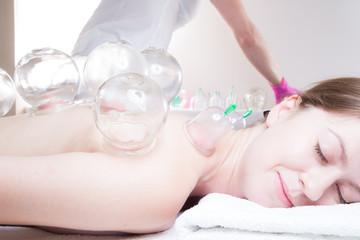 Obraz Masażysta stawia bańki chińskie. Medycyna alternatywna - fototapety do salonu