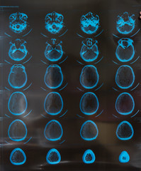 MRI or magnetic resonance image of head and brain scan. Close up view, toned image