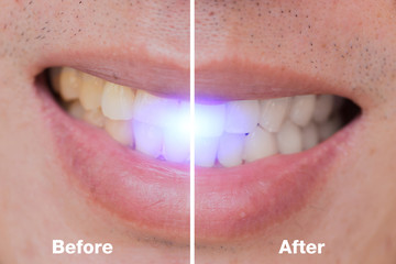 Before and After of dental bleaching in male whitening teeth for remove coffee or cigarette stains.