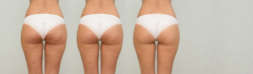 Female buttocks before and after treatment. panoramic