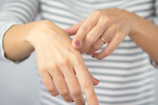 Close up of cooking oil burn scar on a woman's hands. The skin damage in first-degree on outer layer skin. Healing, Removal, Treatment, Accident in the kitchen, Scar, Scald, Wound Healing concept.
