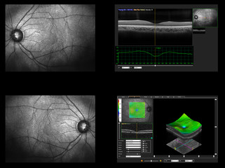 Ophthalmic test - OCT optical coherence tomography measurement. Scan of the macula in retina, layers and thickness of retina.