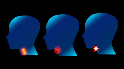Sore Throat side Profile Silhouettes with Ache Location. Adult and children feel Pain in Throat, design illustration.
