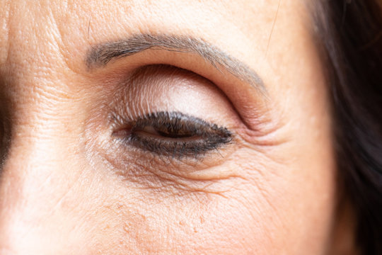 Closeup of female eye with ptosis: drooping eyelid, amblyopia condition called lazy eye.