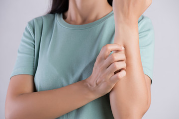 Close up woman arm scratch the itch by hand at home. Healthcare and medical concept.
