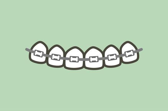 orthodontics teeth or dental braces - tooth cartoon vector flat style