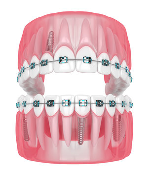 3d render of jaw with implants and orthodontic braces