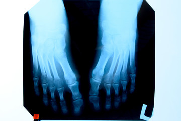 X-ray of toes. Foot on Xray. bone research