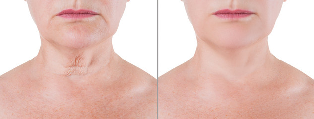 Skin rejuvenation on the neck, before after anti aging concept, wrinkle treatment, facelift and plastic surgery