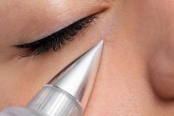 Macro close up detail of laser plasma pen reducing eye wrinkles.