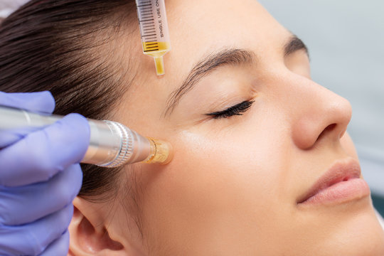 Woman having micro needling treatment reducing crow's feet
