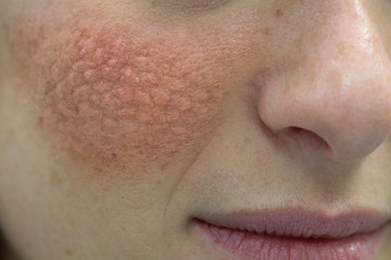 close up of young caucasian women face with red cheeks that cause skin problems