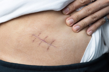 Scar of appendix pain and appendicitis inflammation disease close up