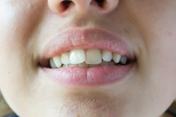 Crooked teeth of a young girl close-up.