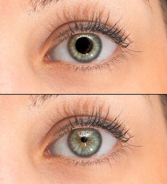A closeup view on green eyes of a pretty young girl. Collage comparing the black pupil, one image shows an enlarged pupil and one shows a reduced pupil. Pupillary light reflex in humans.
